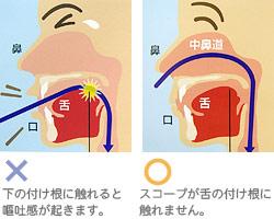 胃カメラというと「苦しい...」というイメージがあります。最近、苦痛の少ない鼻からの胃カメラが話題になっていますが、実際はどうですか?