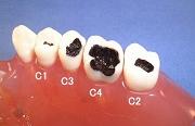 虫歯の進行度合い